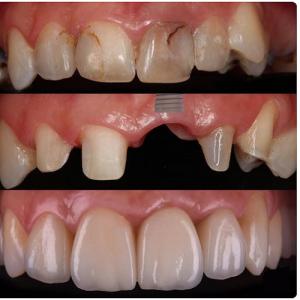 clinica-dental-de-rehabilitacion-de-dientes-en-san-fernando-de-henares
