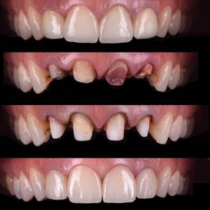 rehabilitacion-dental-en-san-fernando-de-henares-1