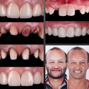 rehabilitacion-dental-san-fernando-de-henares