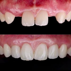 rehabiltacion-dental-en-san-fernnado-de-henares